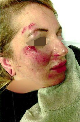 Frau in Wien verprügelt